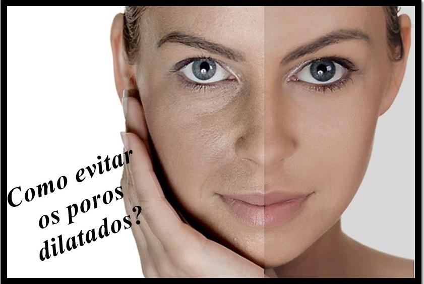 af112ec6d17e7 Pois é, os poros também ficam flácidos assim como a pele. E o excesso de  sol é um dos principais vilões. Peles muito oleosas e sem uma boa higiene  também ...