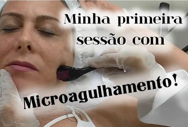 Microagulhamento Dermaroller