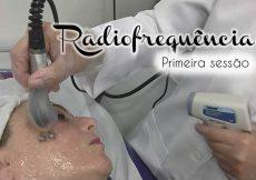 Radiofrequência